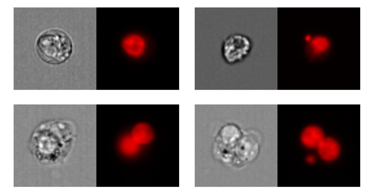 Figure 1. Top left: mononucleated cell; top right: mononucleated cell with micronucleus. Bottom left: binucleated cell; bottom right: binucleated cell with micronucleus. Left: bright-field images; right: nuclear fluorescence images.