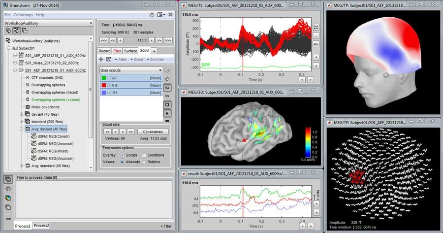 Brainstorm: A MATLAB Based, Open-Source Application for