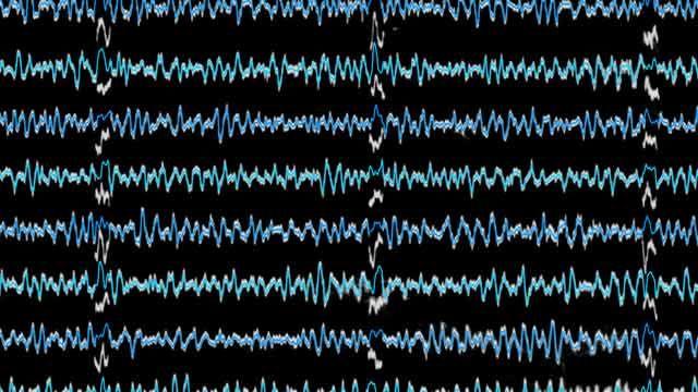 Revitalizing Decades-Old Analog Seismograms Through Image Analysis and Digitization