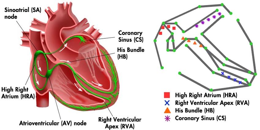 University Of Pennsylvania Develops Electrophysiological Heart Model