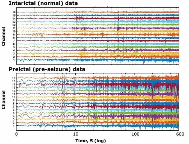 Figure 1. Intracranial EEG data provided by Kaggle.