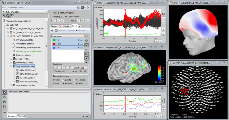 Ieee medical image processing projects using matlab