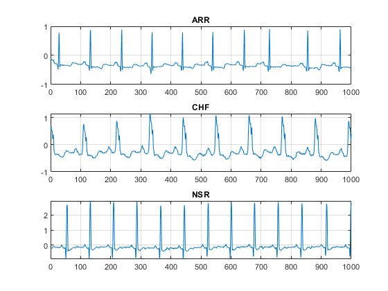 Classify Time Series Using Wavelet Analysis and Deep Learning