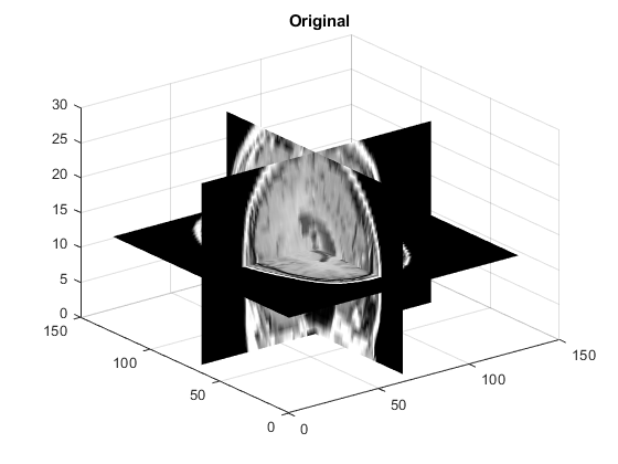 Binary image segmentation using Fast Marching Method - MATLAB imsegfmm