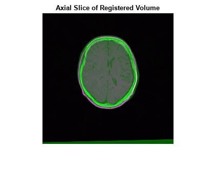 registering multimodal 3 d medical images matlab simulink example