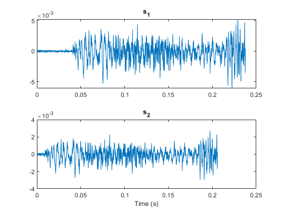 Cross Correlation Matlab Xcorr