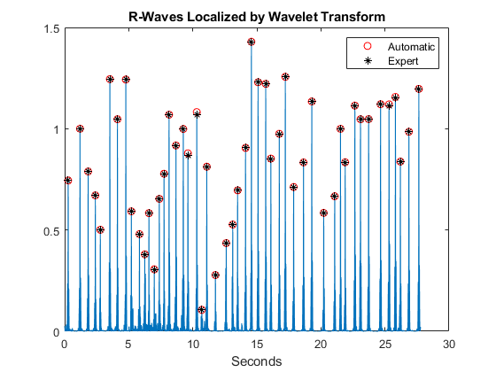 R Wave Detection in the ECG - MATLAB & Simulink