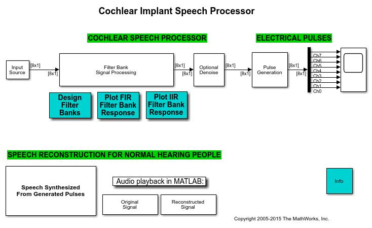 Audiocochlear_01