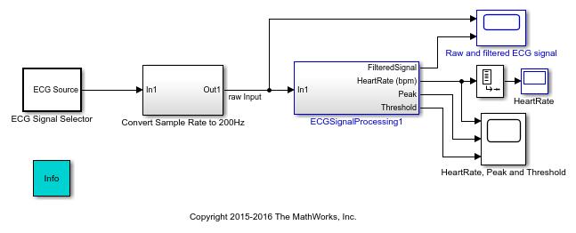 Ex_ecg_sigprocessing_01