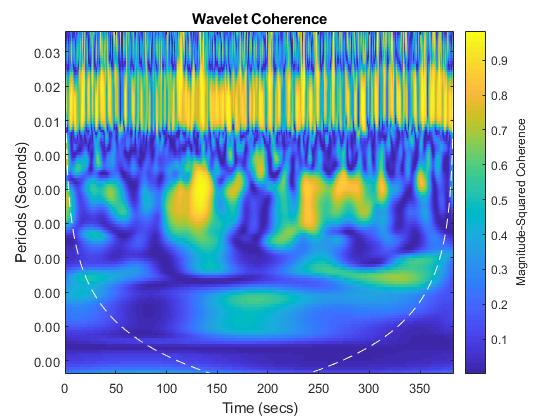 Waveletcoherenceanalysisofbraindynamicsexample_03