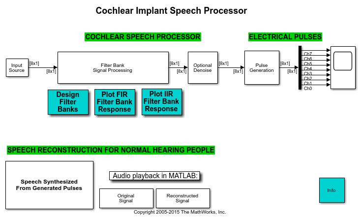 Dspcochlear_02