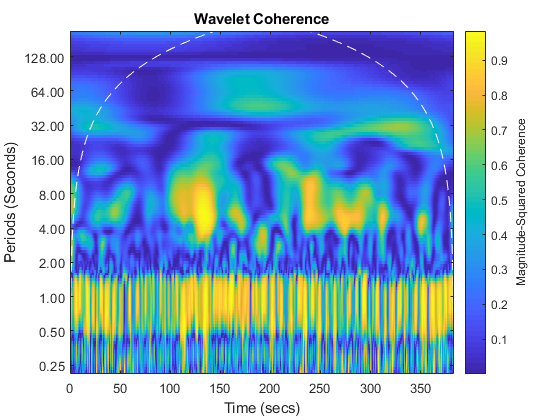 Waveletcoherenceanalysisofbraindynamicsexample_03