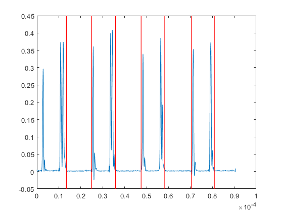 how to automatic segmentation signal - 2019 01 22.png