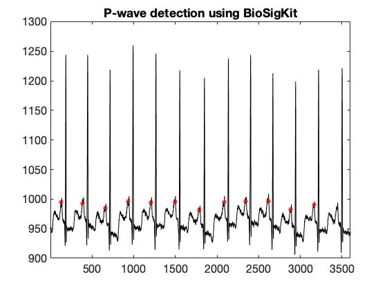 p-wave-detection.jpg