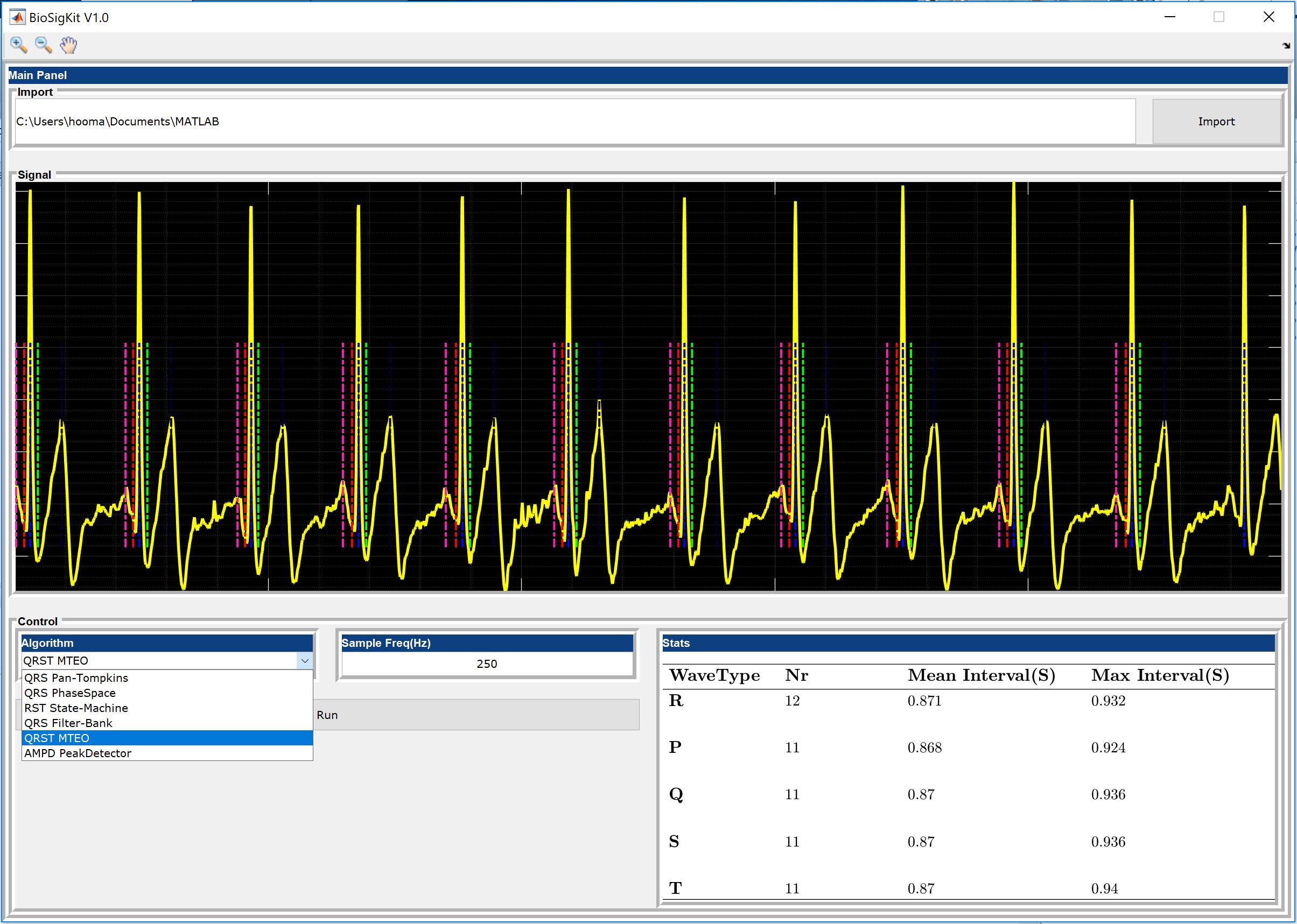 BioSigKit a toolkit for Bio-Signal analysis - File Exchange - MATLAB
