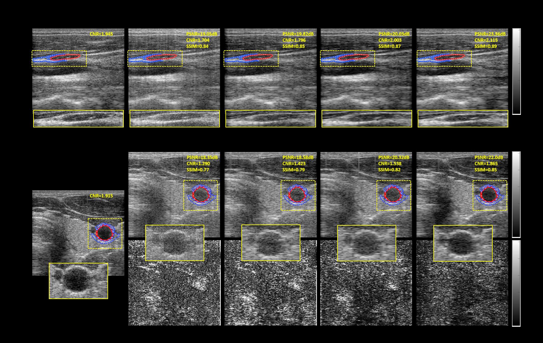 Efficient B-mode Ultrasound Image Reconstruction Using CNN - File