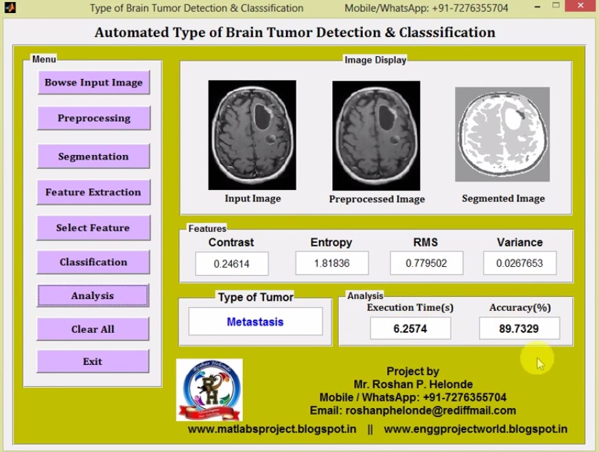 Types of Brain Tumor Detection Using Matlab Project Code - File
