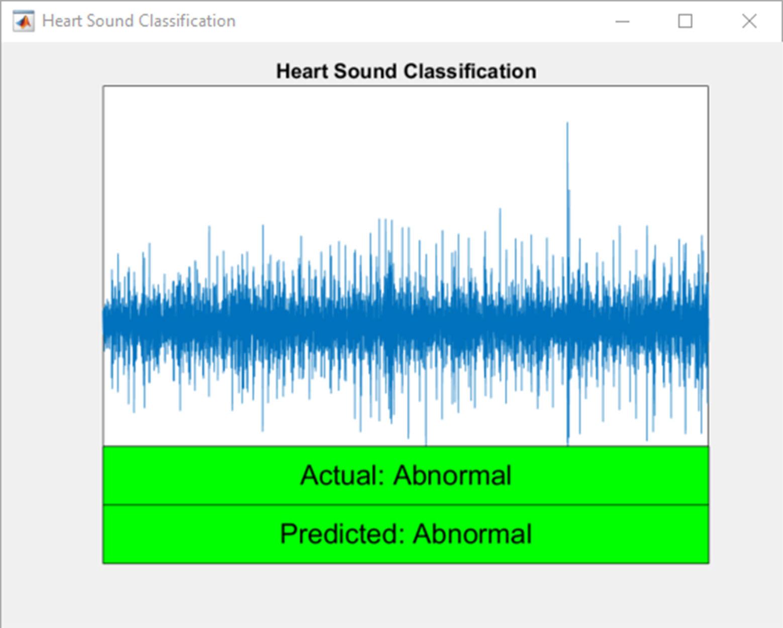 Heart Sound Classifier - File Exchange - MATLAB Central