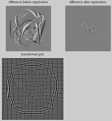B-spline Grid, Image and Point based Registration - File Exchange