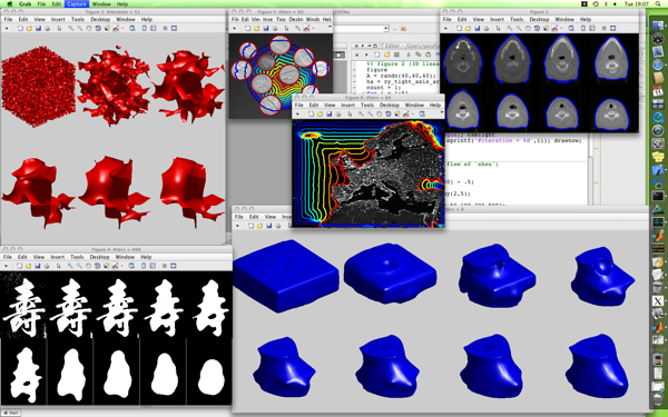 2D/3D image segmentation toolbox - File Exchange - MATLAB Central