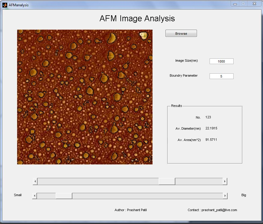 image analysis Celleste image analysis software provides a comprehensive suite of image  analysis and visualization tools in a format designed for usability and efficiency.