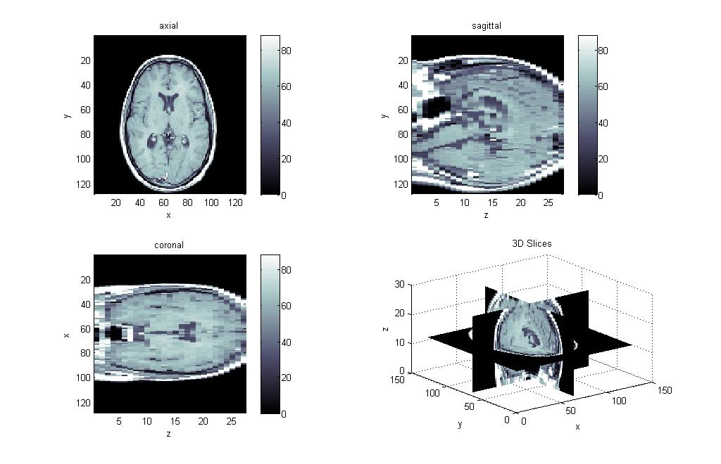Visualize 3D volumetric image data such as MRI images in