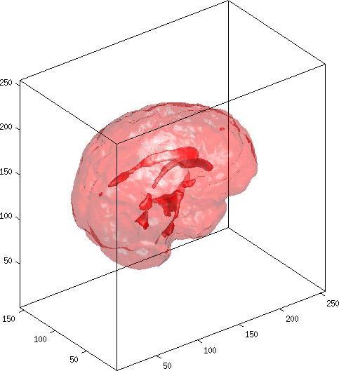Fast Continuous Max-Flow Algorithm to 2D/3D Multi-Region Image