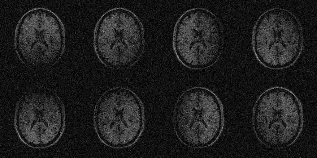 Parallel MRI noisy phantom simulator - File Exchange - MATLAB Central