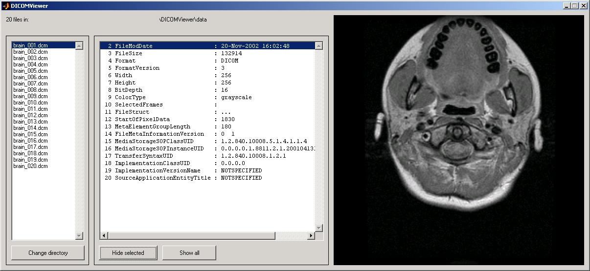 DICOM Viewer - File Exchange - MATLAB Central