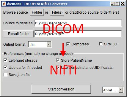 convert dicom to nifti