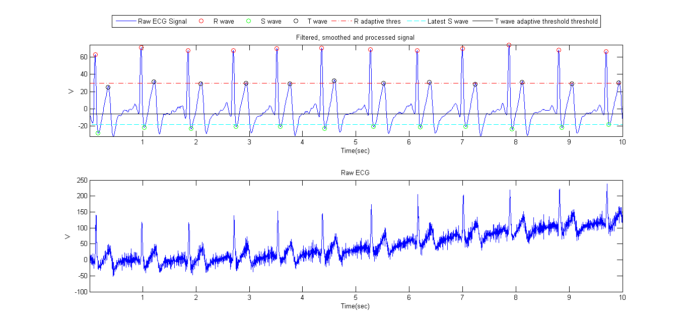 An online algorithm for R, S and T wave detection - File Exchange