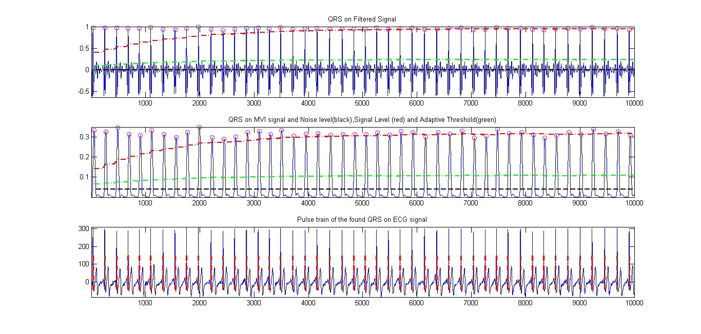 Complete Pan Tompkins Implementation ECG QRS detector - File
