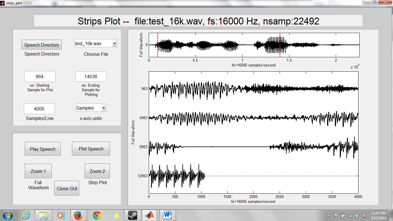 how to find pitch of speech signal in matlab
