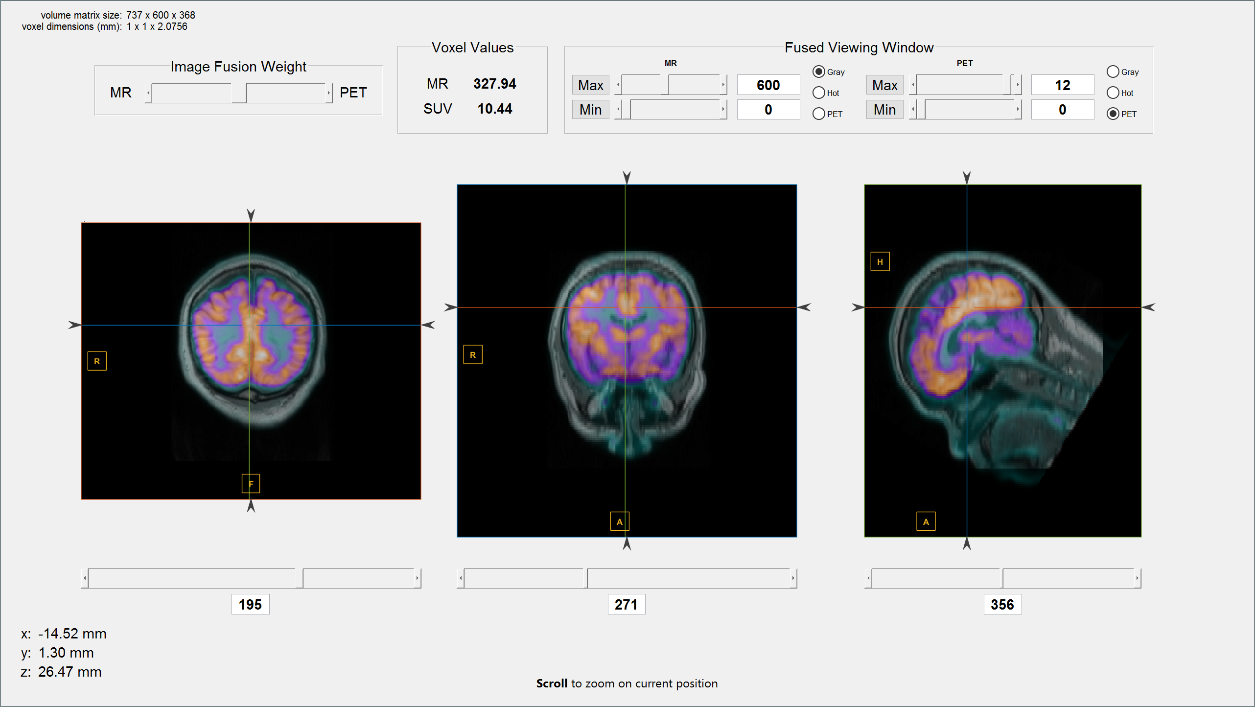 Medical Image Reader and Viewer - File Exchange - MATLAB Central