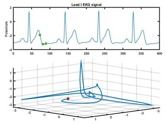 EKG Animation