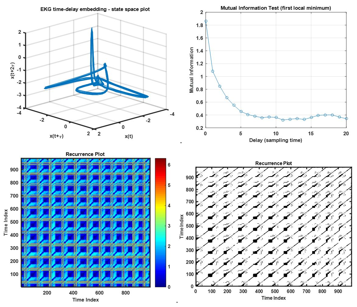 Tool box of recurrence plot and recurrence quantification