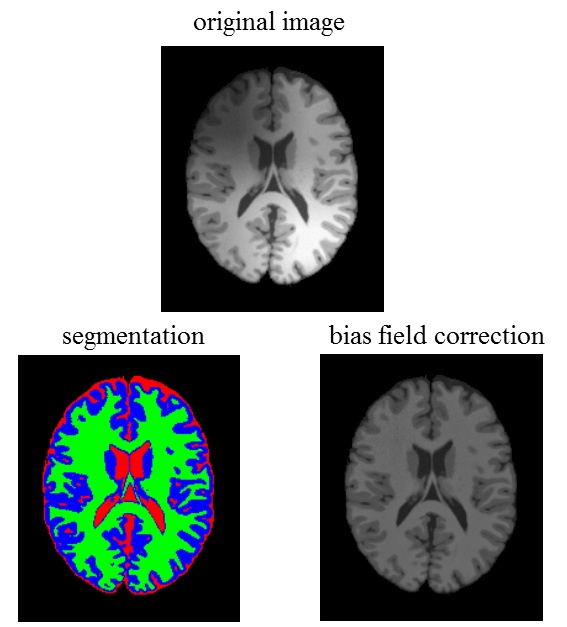 MRI segmentation and bias field correction - File Exchange - MATLAB