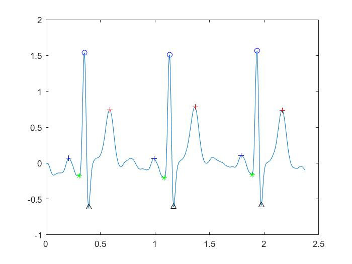 ECG P QRS T wave detecting matlab code - File Exchange