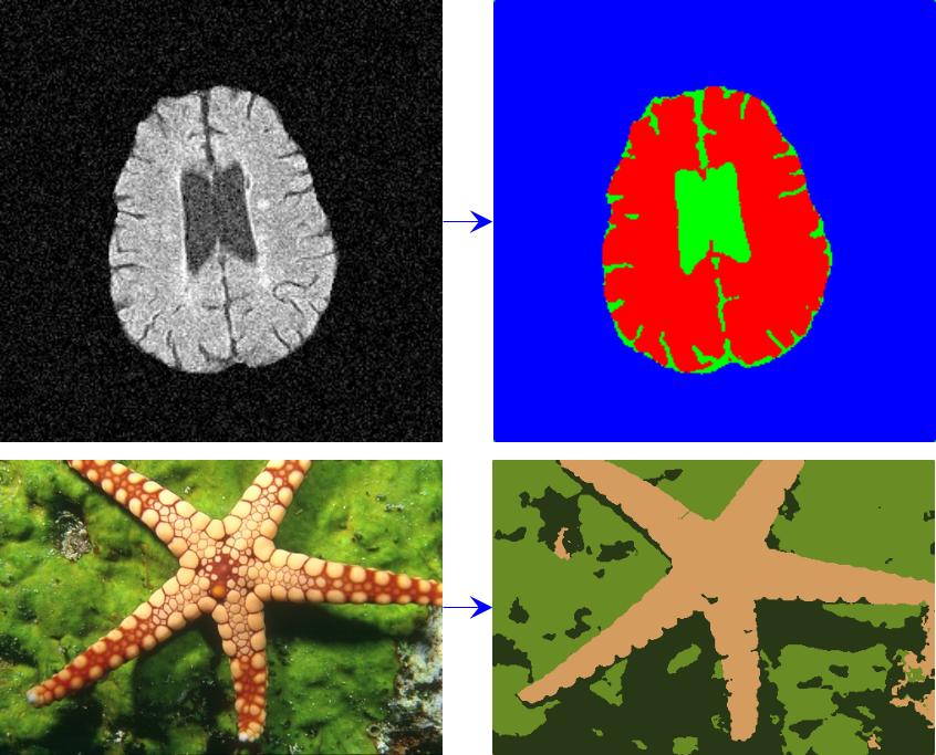 Image segmentation using fast fuzzy c-means clusering - File