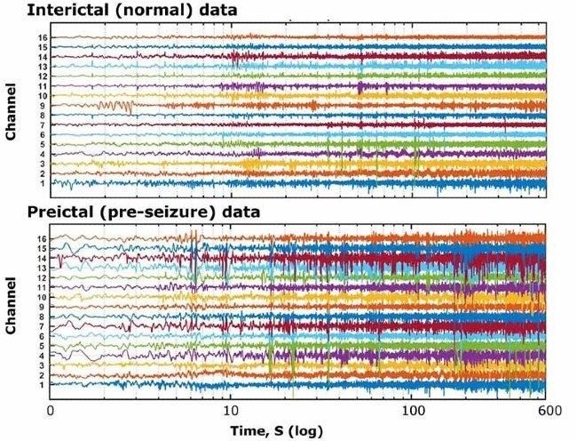 Intracranial EEG data provided by Kaggle.