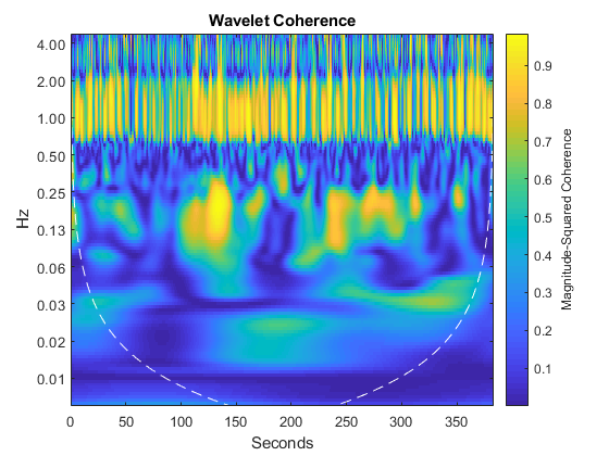 Wavelet Coherence of Brain Dynamics