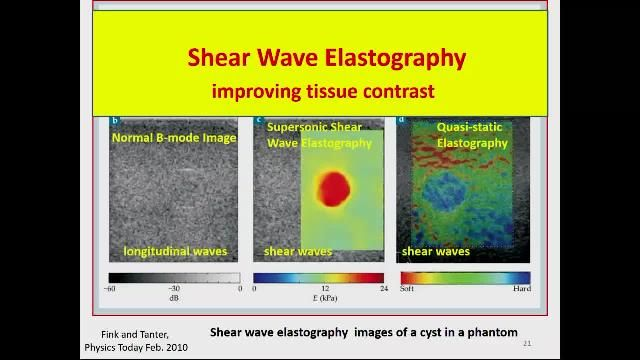 This plenary talk describes recent innovations in medical ultrasound and ultrasound research, simulations, and research systems using MATLAB.